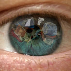 Thumbnail cataractsurgery
